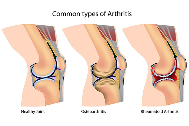Nutrition and Arthritis