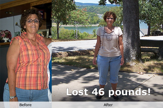 before/after photos - 44 lbs lost